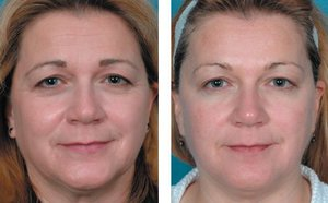 Skindulgence 30-Minute Non-Surgical Facelift System